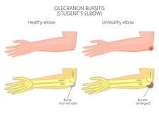 鹰嘴滑囊炎或学生的手肘 库存例证