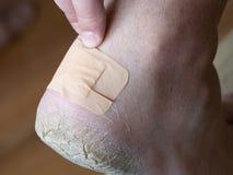 黏着性绷带关闭在脚跟的老茧 免版税库存照片
