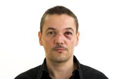 黑色被伤的眼睛鼻子 免版税图库摄影