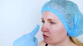 鼻整形术:入场的患者对一位整形外科医生 她必须审阅鼻子 股票视频