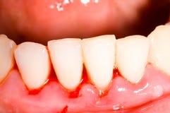 齿龈出血 库存照片