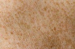 Δέρμα Στοκ Εικόνες