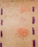 δοκιμή δερμάτων αλλεργία Στοκ εικόνα με δικαίωμα ελεύθερης χρήσης