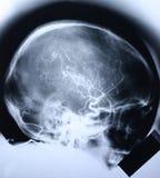 1个头骨X-射线 免版税库存照片