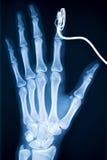 1个X-射线 免版税库存图片
