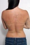1女性削皮晒伤了 图库摄影