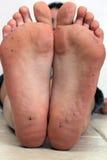 1 βρώμικα πόδια Στοκ Εικόνες