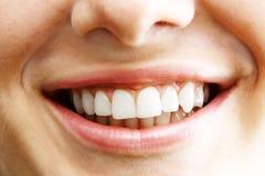 1 γυναίκα δοντιών Στοκ Εικόνες
