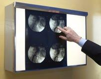 1 новая радиология Стоковые Изображения