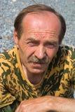 1 человек sunburned Стоковые Фотографии RF