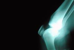 1 radiographyserie Royaltyfria Bilder