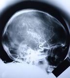 1 skalleröntgenstråle Royaltyfri Foto