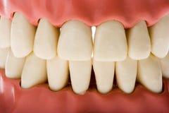 2牙齿模子 免版税库存图片