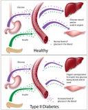 2糖尿病类型 免版税图库摄影