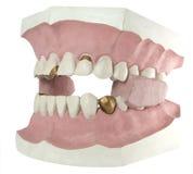 2 isolerad tand Arkivfoto