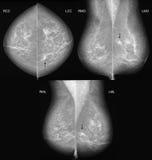 3 проекции маммографии рака молочной железы Стоковые Изображения