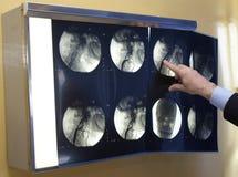 3 nowa radiologia Zdjęcia Royalty Free
