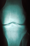 3 radiographyserie Royaltyfri Bild