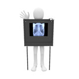 3d man pulmonary film Stock Photos
