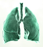 3D medical illustration lungs Stock Photography