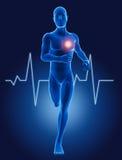 3D medycznego mężczyzna bieg z ECG Obraz Royalty Free