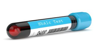 Free 3d Render Of HbA1c Blood Tube Over White Royalty Free Stock Photography - 161872117