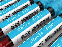 Free 3d Render Of HbA1c Blood Tubes In Row Stock Photography - 161872152