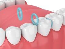 Free 3d Render Of Rubber Separators Between Teeth Royalty Free Stock Photography - 170460747
