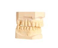 4牙齿印象 图库摄影
