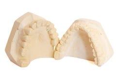 5牙齿印象 免版税库存照片
