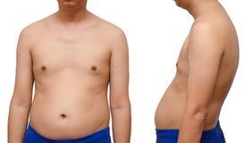 Aísle al hombre gordo superficial abdominal en la visión delantera y trasera Imágenes de archivo libres de regalías