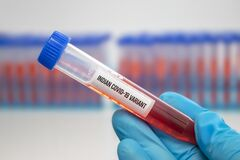Free A Medical Worker Holding A Centrifuge Tubes With Graduated Marks With A Covid-19 Indian Variant Virus Sample. Stock Photos - 216814323