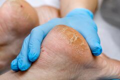 Free A Pedicure Doctor Examines A Patient`s Feet With Problematic Heels With Cracks And Dry Skin. Foot Treatment And Care For Diabetic Royalty Free Stock Images - 215401119