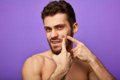 Aantrekkelijke mens die problemen met zijn gezicht hebben royalty-vrije stock afbeelding