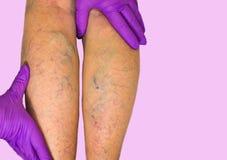 Abaissez l'examen vasculaire de membre parce que suspect d'insuffisance veineuse Image libre de droits