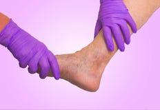 Abaissez l'examen vasculaire de membre parce que suspect d'insuffisance veineuse Photo libre de droits