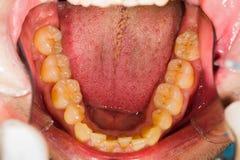 Abaissez le dentier Image stock