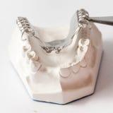 Abaissez le dentier partiel avec des attachements Photographie stock libre de droits
