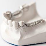 Abaissez le dentier partiel avec des attachements Photographie stock