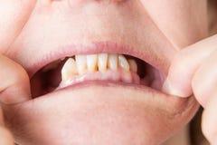 Abaissez les dents arrières inférieures manquant avec l'avant exposé Photographie stock