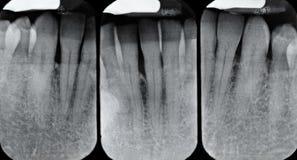 Abbassi i raggi X peridentali fotografia stock