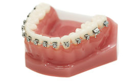 Abbassi le parentesi graffe dentali della parentesi della mascella fotografia stock libera da diritti