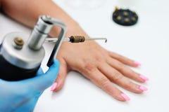 Abbau von Warzen in der Dermatologieklinik Lizenzfreie Stockfotografie