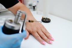 Abbau von Warzen in der Dermatologieklinik Stockfoto