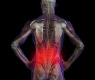 Abbildung der menschlichen niedrigeren Schmerz der rückseitigen Schmerz Stockbilder