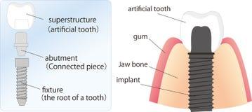 Abbildung des Zahnimplantats Stockfotos