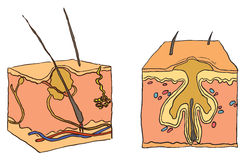 Abbildung für Akne Lizenzfreie Stockbilder