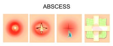 Abcès, furuncle, autopsie, bandage Image libre de droits