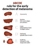 The ABCD rules of Skin Cancer. ABCDE Rule for the early detection of Melanoma Royalty Free Stock Photos