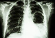Abcesso do pulmão imagem de stock royalty free